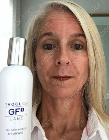 GF1 Aftercare vermindert roodheid en versnelt de genezing na invasieve behandelingen