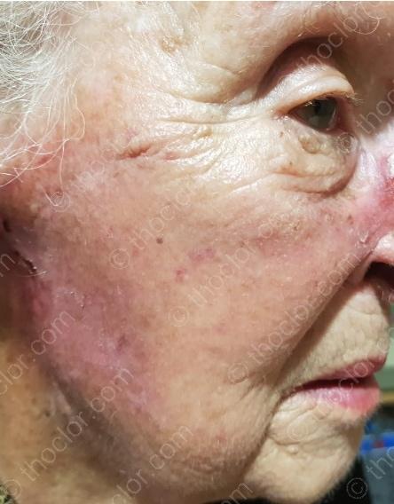 Thoclor Labs HOCl vermindert roodheid en versnelt de genezing na bestralings behandelingen